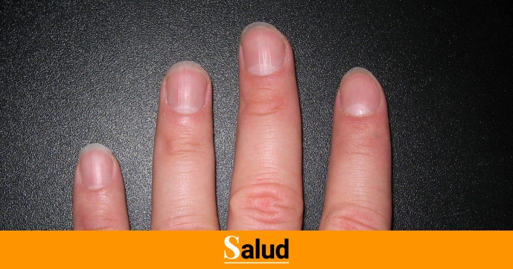 El detalle en tus uñas que puede revelar si has pasado el coronavirus