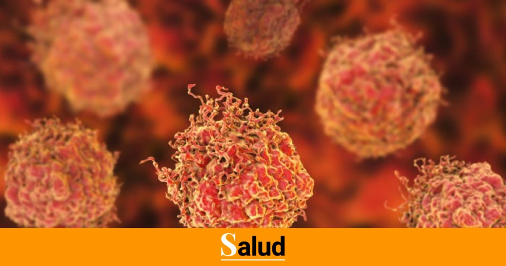Cómo detectar el cáncer de próstata en una etapa temprana